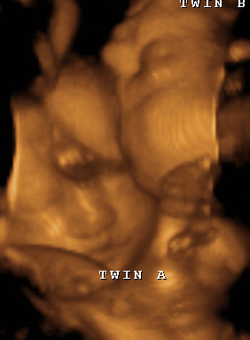 Twins 4d ultrasound with babies face to face.PNG